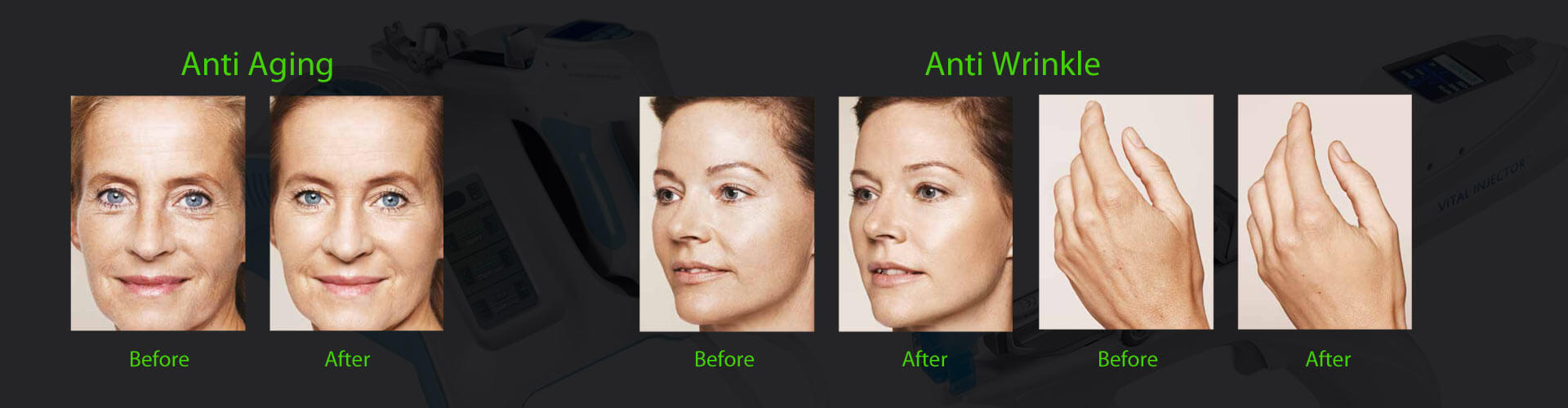 anti aging vital injector