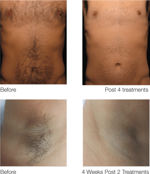laser hair removal on a mans chest