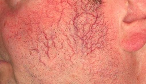 vascular lessions